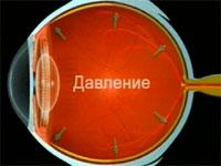 Подозрение на глаукому симптомы