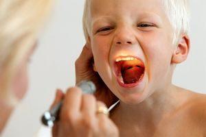 лечить аденоиды у детей в Иванове